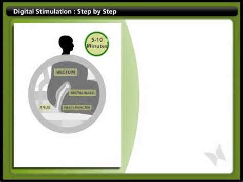 Stool Disimpaction - bowel digital stimulation