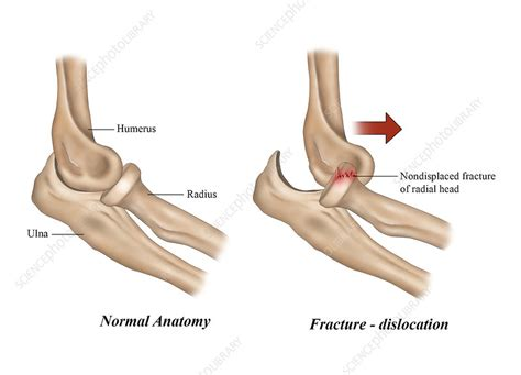 Fractured and Dislocated Elbow, illustration - Stock Image ...