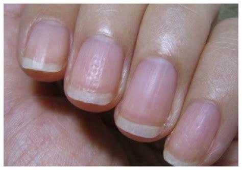 指 が 腫れる 一 本 だけ 足