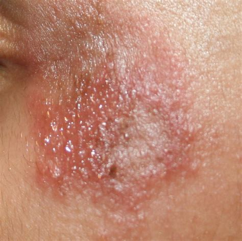 Itchy Rash Blog Of Online Skin Specialist