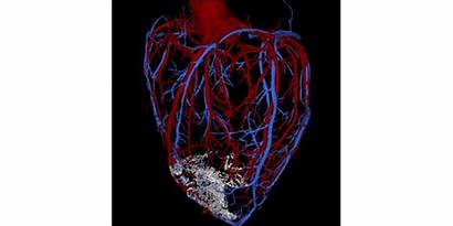 Stem Heart Cell Muscle Therapy Regeneration Cells