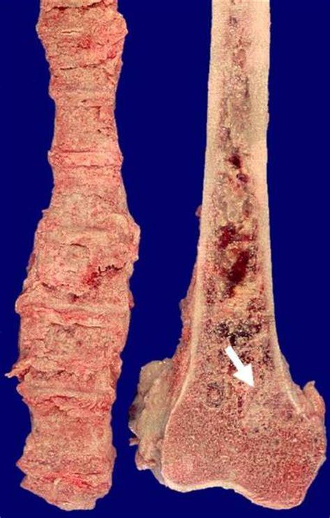 knochenmetastasen eines prostatakarzinoms doccheck pictures