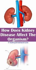 Kidney Diagram Quizlet