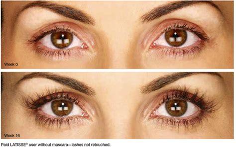 latisse eye color change will latisse change my eye color