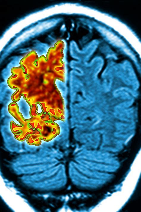 hope  alzheimers sufferers  scientists develop