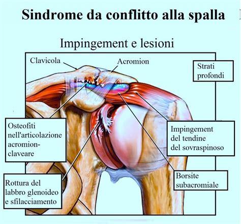 Dolore Interno Spalla Destra - calcificazione alla spalla e tendinite sintomi rimedi