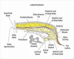 Internal Brow Elevation At Blepharoplasty