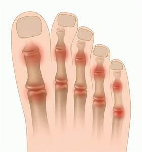 Чем снять боль при артрите коленного сустава