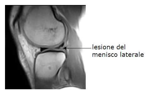 Lesione Corno Posteriore Menisco Interno Lesioni Meniscali
