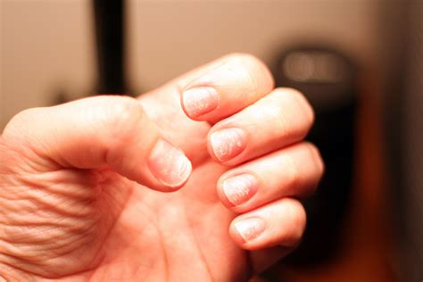 What It Really Means When You Have Ridges on Your Nails