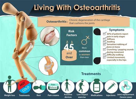 living  osteoarthritis   knees  hips pain doctor