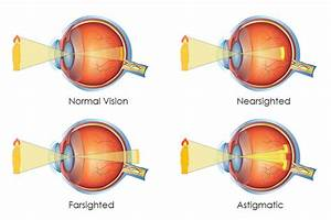 Is it Genetic to be Near-sighted, Far-Sighted or ...