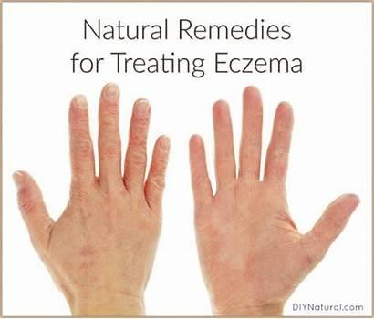 Eczema Natural Remedies Internal External Both Treatment