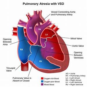 Pulmonary Atresia  Heart Diagram  Pulmonary Atresia Diagram  Pulmonary Atresia With Vsd