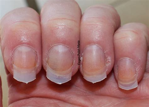 Nubs To Nails-a Nexgen Gel Dip Story