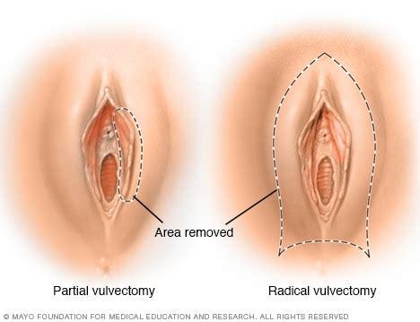 vulvectomy mayo clinic