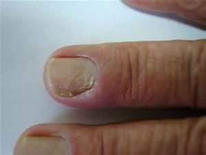Paronychia: acute and chronic (nail disease, felon/whitlow ...