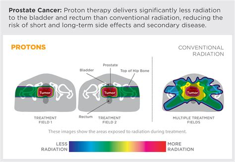 Proton Beam Radiation Therapy by Proton Therapy Provision Healthcare