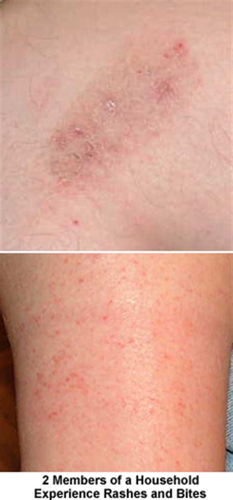 bird lice rash www pixshark com images galleries with