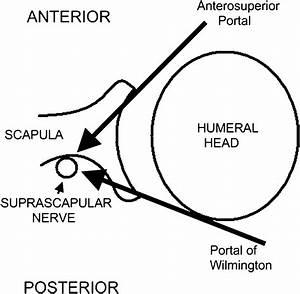 Injury Of The Suprascapular Nerve During Arthroscopic