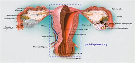 Wiring And Diagram: Diagram Of Uterus Ovaries And ...