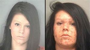 63 best Faces of meth images on Pinterest