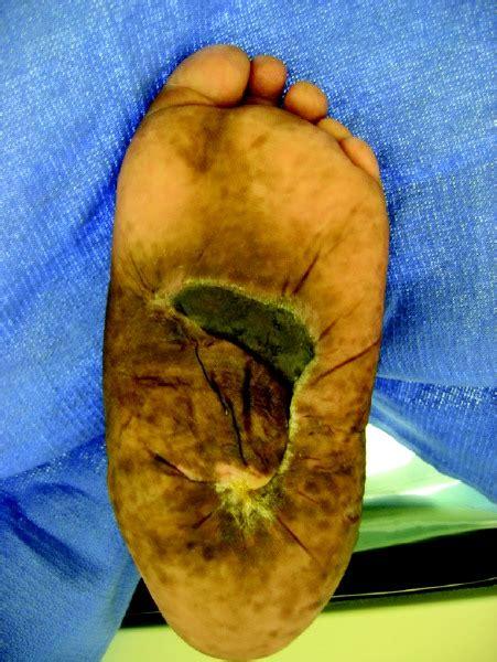 rocker bottom reconstruction  viable option  limb