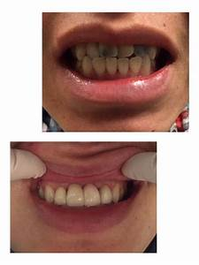 Before and after photos of 4 Zirconia crowns placed on his ...