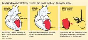 Diagnosis: Brok... Broken Heart Syndrome