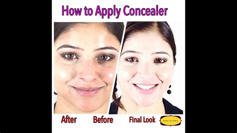 How To Apply Concealer And Hide Acne Pigmentation Redness