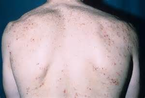 Dermatitis Herpetiformis Picture (Hardin MD Super Site Sample) Dermatitis