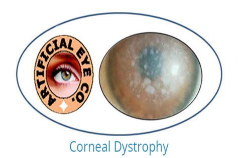 Prosthetic Eye Contact Lenses Type For Light Sensitivity