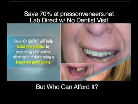 Press On Veneers as Compared with Snap On Smile - YouTube