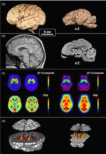 Comparison Of Human  Left  And Pig  Right  Brain Images