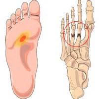 pijn onderkant tenen