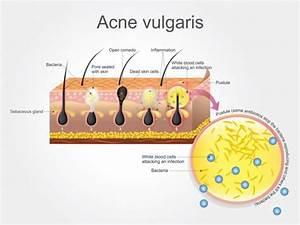 Human Anatomy  Skin And Hair Diagram  U2014 Stock Vector