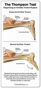The Thompson Test Is Used To Determine If The Achilles