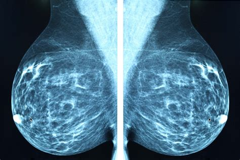 Abnormal Mammogram Questions To Ask Readers Digest
