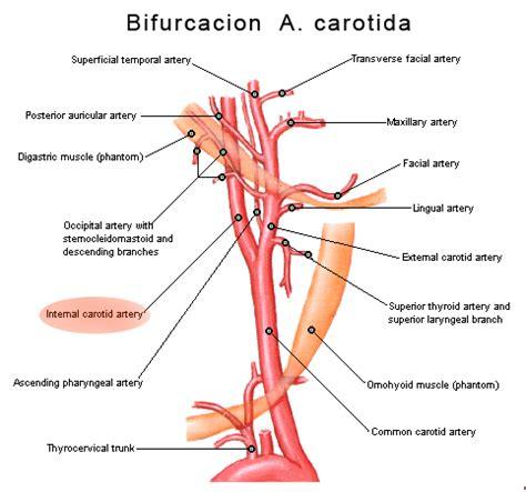 aneurisma carotide interna imagenes de arteria carotida