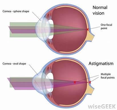 Astigmatism Eye Normal Surgery Laser Involved Vision