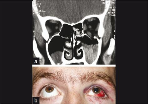 Fractured Orbital Floor With Ocular Entrapment by A Coronal Ct Scan Of The Patient Showing The Left