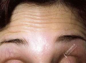 Крема от морщин вокруг глаз эйвон отзывы