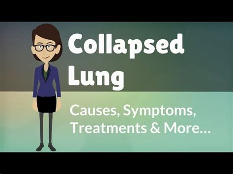 Collapsed Lung  Causes, Symptoms, Treatments & More. Lie Signs Of Stroke. Fingernail Signs. Finger Joint Signs. Drink Signs. Body Worksheet Signs. Miosis Signs. Laminitis Signs. Old Signs