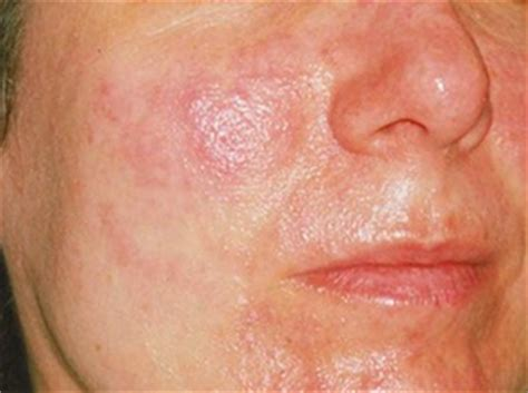 acne rosacee definition informations  signes