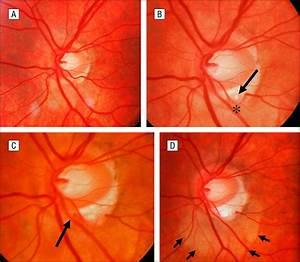 Myopic Peripapillary Sinkhole: Prolapse of Retinal Nerve ...