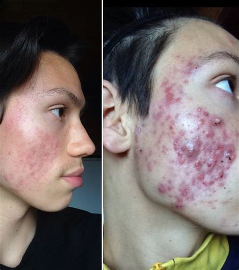 Cytotec And Xanax Is Isotretinoin A Cure For Acne Synthroid Hair Loss Does