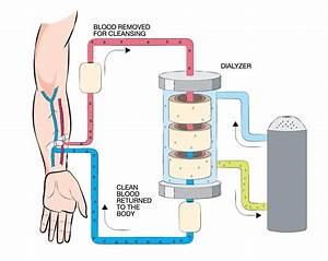 Diagram Of Hemodialysis