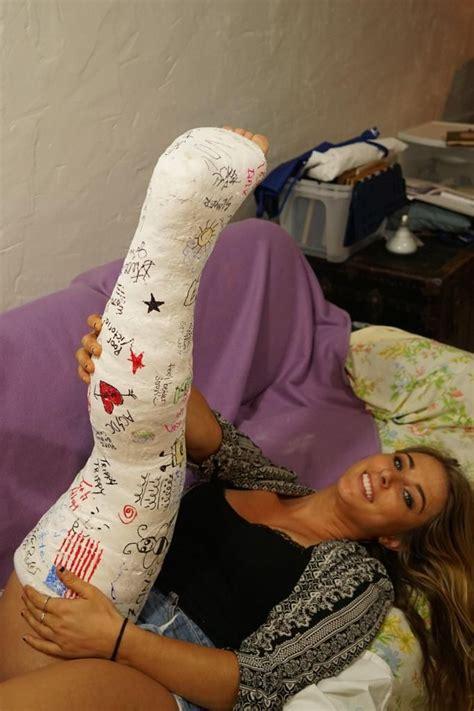 Victorias Plaster Llc Long Leg Cast Leg Cast Broken Leg