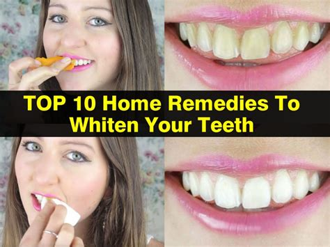 Home Teeth Whitening by Top 10 Home Remedies To Whiten Your Teeth