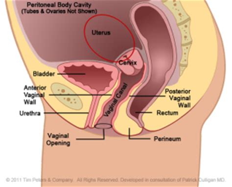 Hysterectomy Options   Dr. Veronikis - Dr. Wood St. Louis